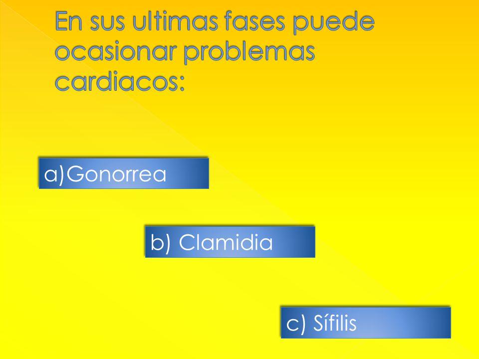 a)GonorreaGonorrea a)GonorreaGonorrea b) Clamidia c) Sífilis