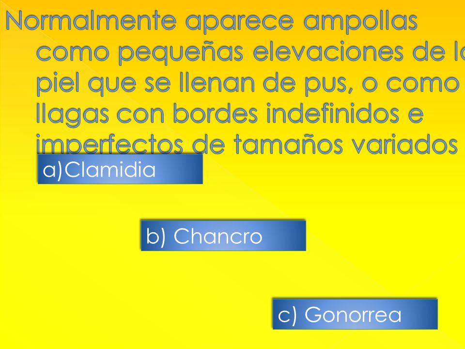 a)ClamidiaClamidia a)ClamidiaClamidia b) Chancro c) Gonorrea