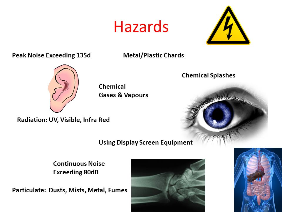 Hazards Peak Noise Exceeding 135dMetal/Plastic Chards Chemical Gases & Vapours Continuous Noise Exceeding 80dB Radiation: UV, Visible, Infra Red Chemi