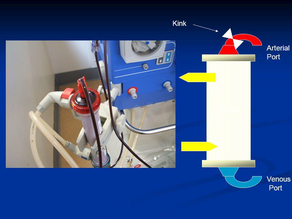 Kidney Kink Arterial Port Venous Port