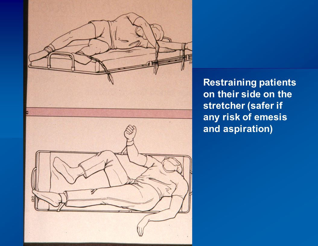 Restraining patients on their side on the stretcher (safer if any risk of emesis and aspiration)