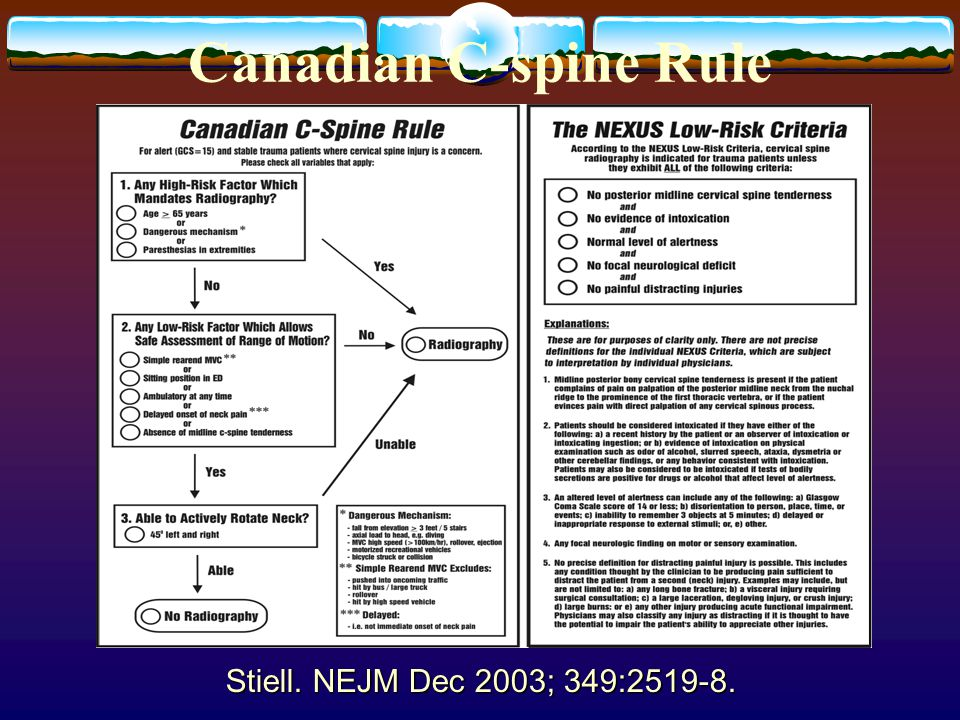 Stiell. NEJM Dec 2003; 349:2519-8. Canadian C-spine Rule