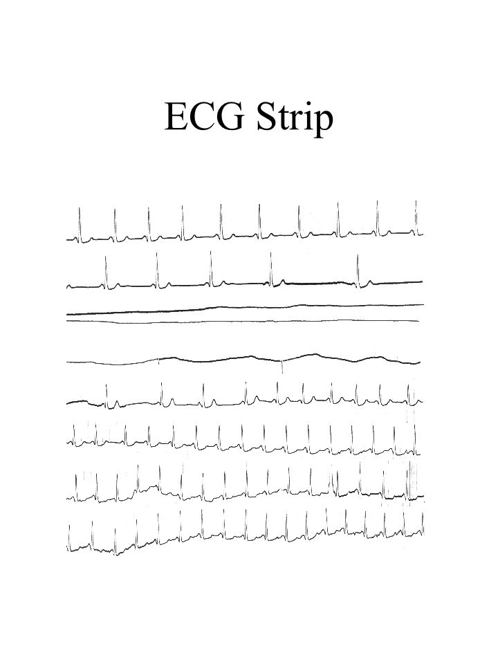 ECG Strip