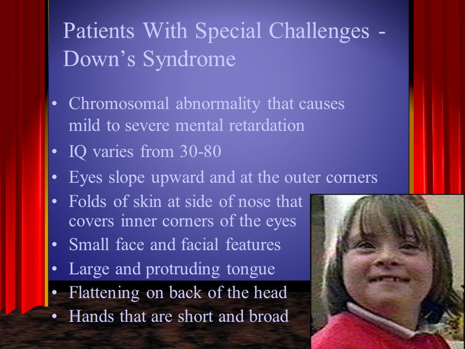 Patients With Special Challenges - Down's Syndrome Chromosomal abnormality that causes mild to severe mental retardation IQ varies from 30-80 Eyes slo