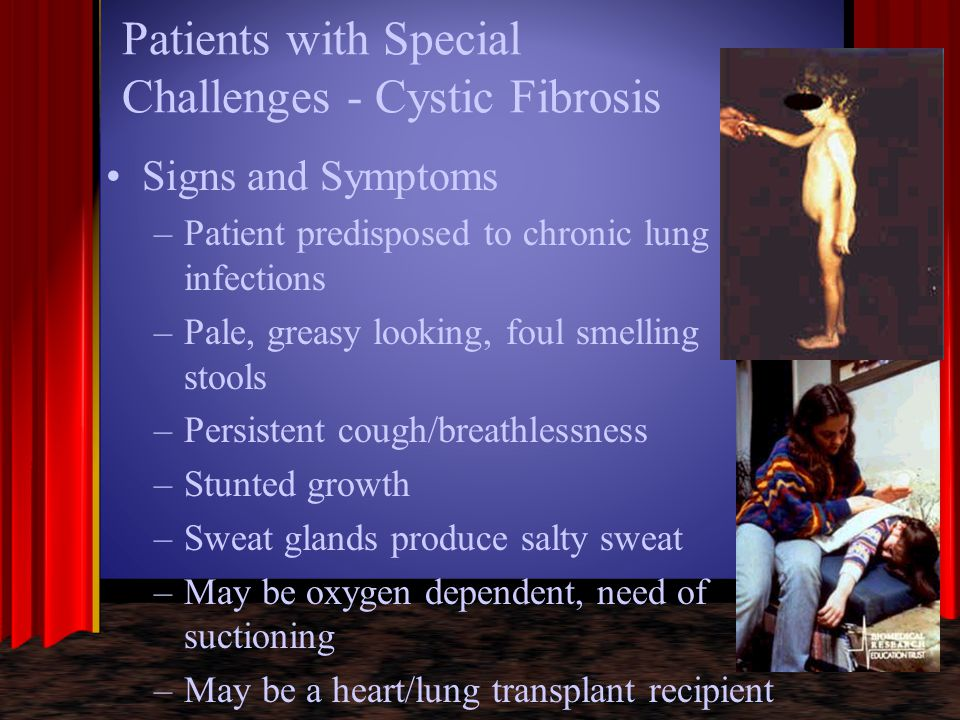 Patients with Special Challenges - Cystic Fibrosis Signs and Symptoms –Patient predisposed to chronic lung infections –Pale, greasy looking, foul smel