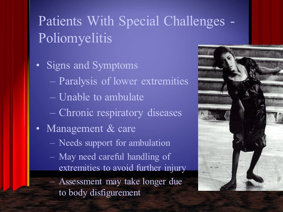 Patients With Special Challenges - Poliomyelitis Signs and Symptoms –Paralysis of lower extremities –Unable to ambulate –Chronic respiratory diseases