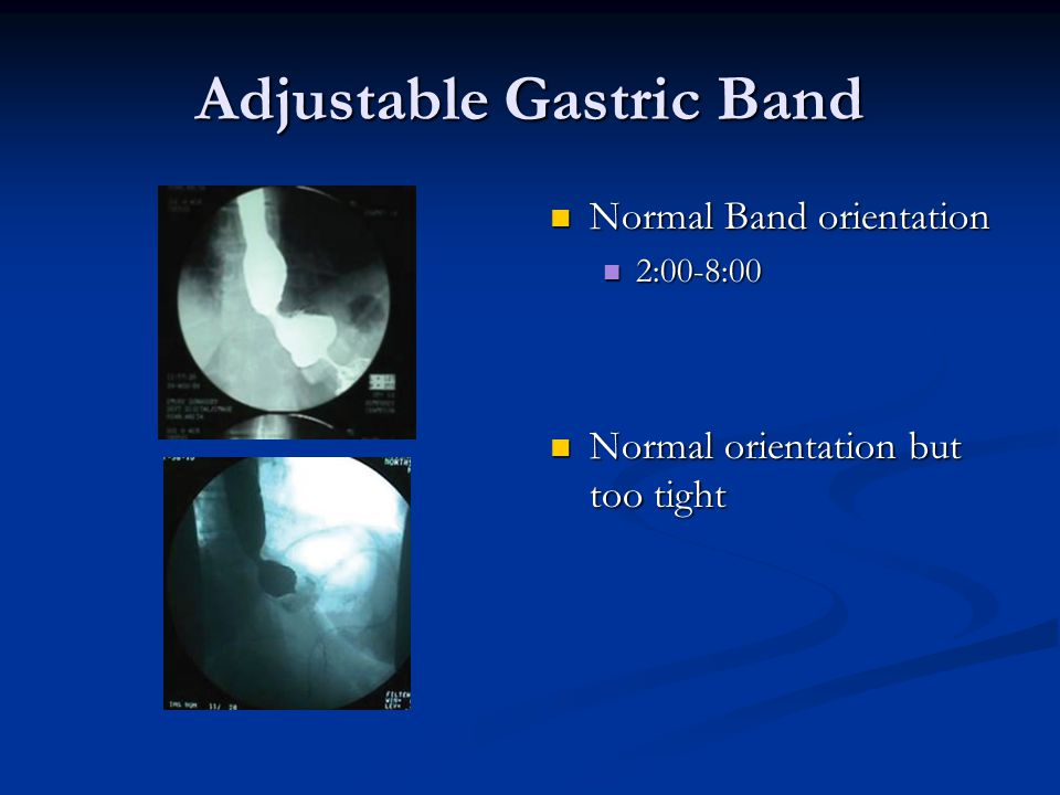 Adjustable Gastric Band Normal Band orientation 2:00-8:00 Normal orientation but too tight