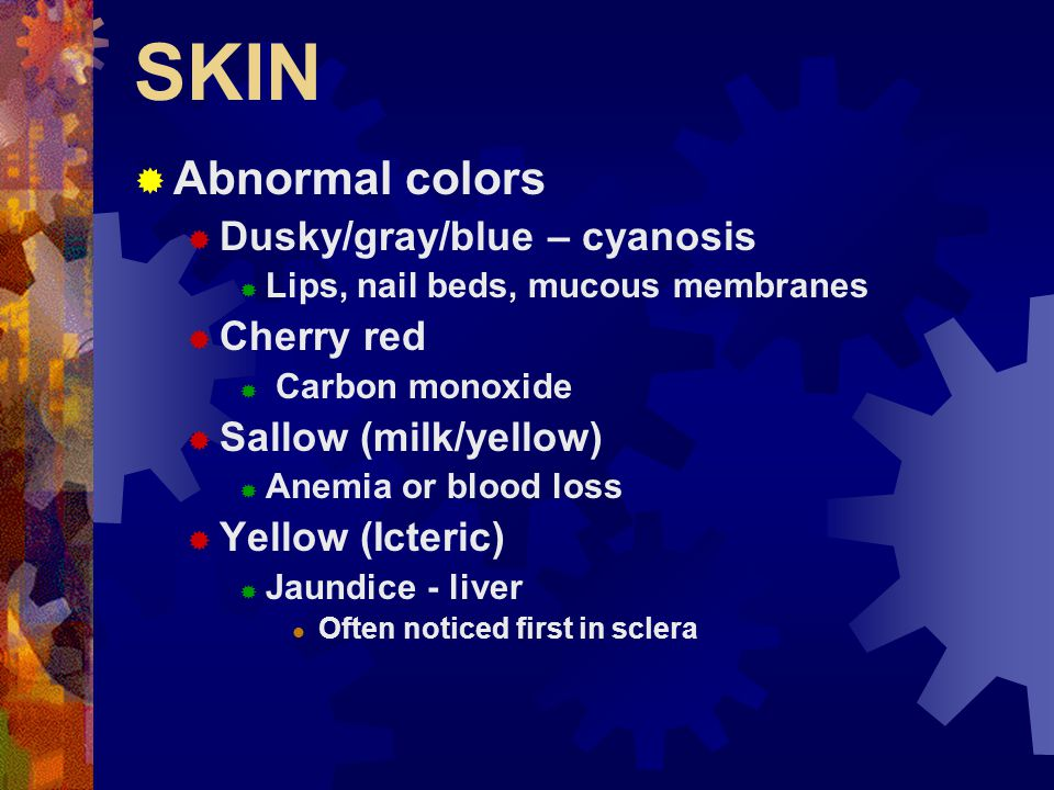 SKIN  Importance of examination of the skin  Easily accessible  Highly visible  Easily palpable  Will demonstrate many signs of illness/injury  Expose it  Utilize a good light source  Racial/Ethnic limitations  Alternatives – Where do I look.