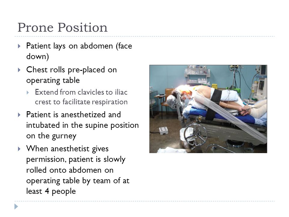 Prone Position  Patient lays on abdomen (face down)  Chest rolls pre-placed on operating table  Extend from clavicles to iliac crest to facilitate respiration  Patient is anesthetized and intubated in the supine position on the gurney  When anesthetist gives permission, patient is slowly rolled onto abdomen on operating table by team of at least 4 people