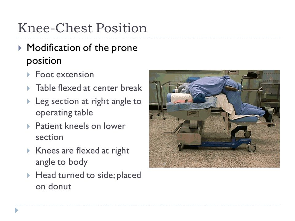 Knee-Chest Position  Modification of the prone position  Foot extension  Table flexed at center break  Leg section at right angle to operating table  Patient kneels on lower section  Knees are flexed at right angle to body  Head turned to side; placed on donut