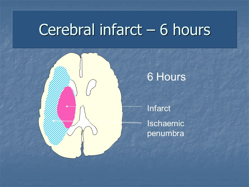 Cerebral infarct – 6 hours 6 Hours Infarct Ischaemic penumbra