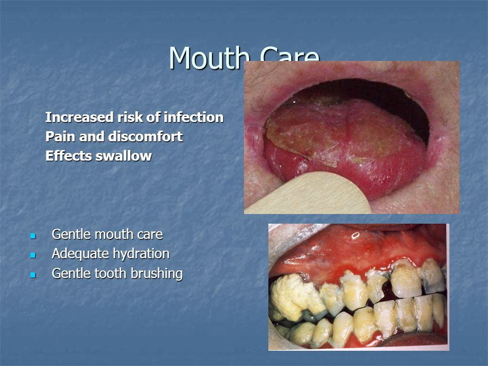 Mouth Care Increased risk of infection Increased risk of infection Pain and discomfort Pain and discomfort Effects swallow Effects swallow Gentle mouth care Gentle mouth care Adequate hydration Adequate hydration Gentle tooth brushing Gentle tooth brushing