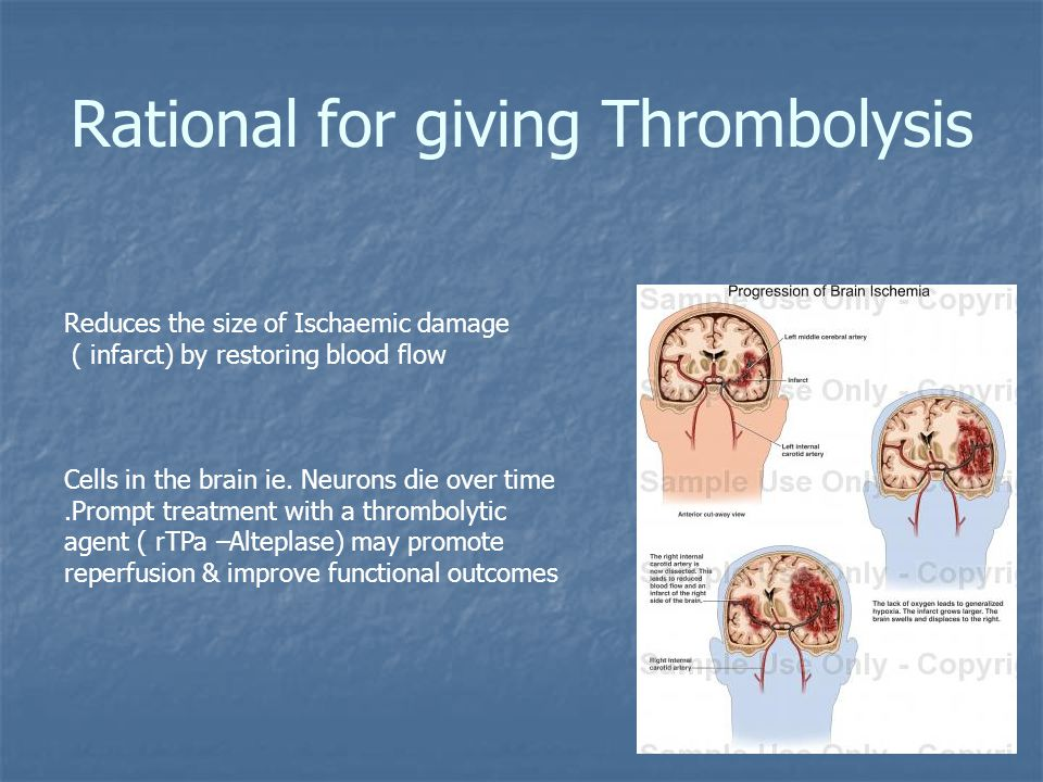 Rational for giving Thrombolysis Reduces the size of Ischaemic damage ( infarct) by restoring blood flow Cells in the brain ie.