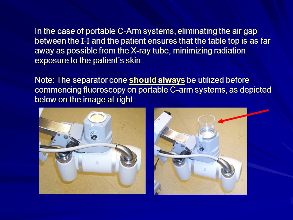 In the case of portable C-Arm systems, eliminating the air gap between the I-I and the patient ensures that the table top is as far away as possible f