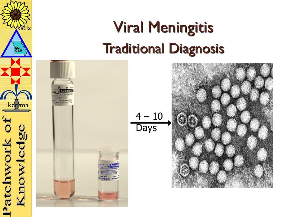 kscls kcclma Viral Meningitis Traditional Diagnosis 4 – 10 Days