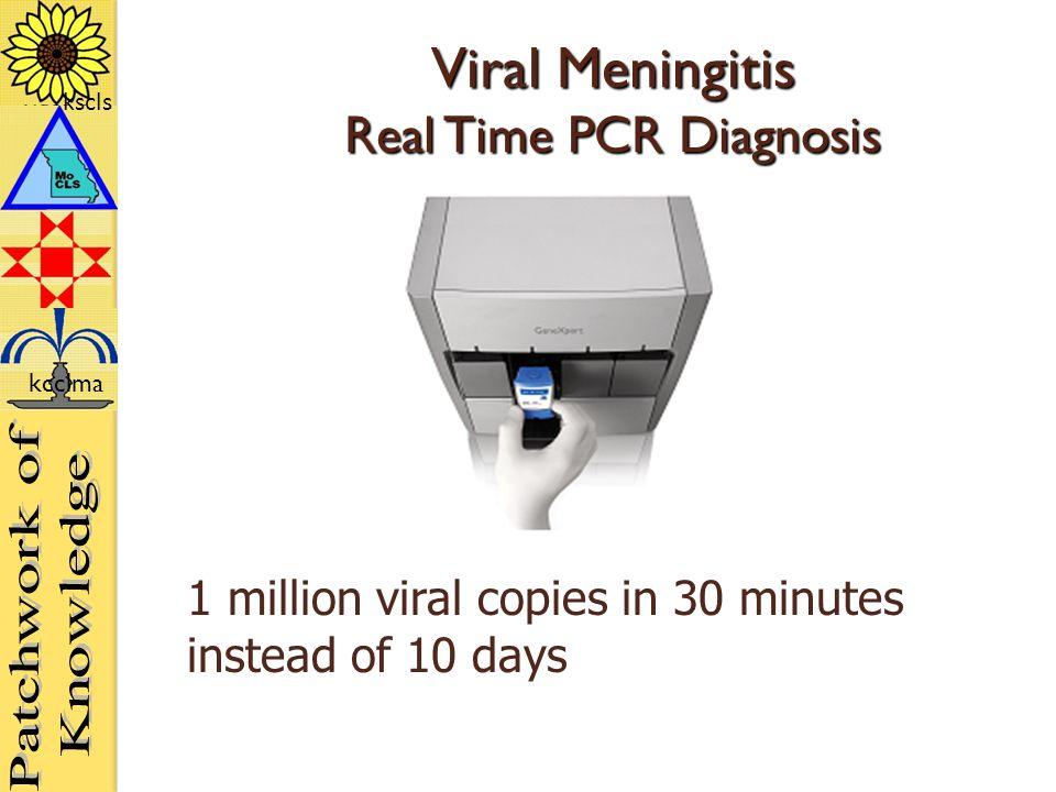 kscls kcclma Viral Meningitis Real Time PCR Diagnosis 1 million viral copies in 30 minutes instead of 10 days