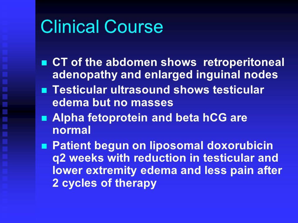 Clinical Course CT of the abdomen shows retroperitoneal adenopathy and enlarged inguinal nodes Testicular ultrasound shows testicular edema but no mas
