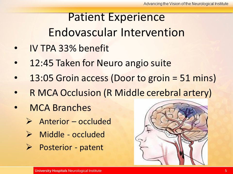 Advancing the Vision of the Neurological Institute 5 Patient Experience Endovascular Intervention IV TPA 33% benefit 12:45 Taken for Neuro angio suite