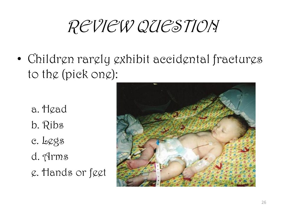 26 REVIEW QUESTION Children rarely exhibit accidental fractures to the (pick one): a.