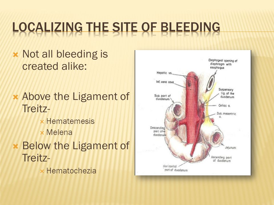  UGI Endoscopy identified a small bleeding ulceration which was cauterized.