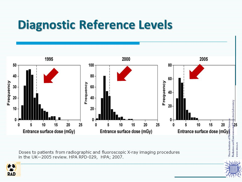 Diagnostic Reference Levels Doses to patients from radiographic and fluoroscopic X-ray imaging procedures in the UK—2005 review. HPA RPD-029, HPA; 200