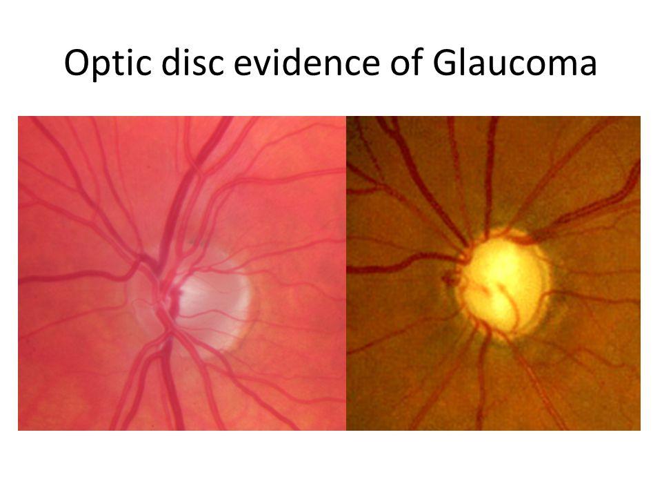 Optic disc evidence of Glaucoma