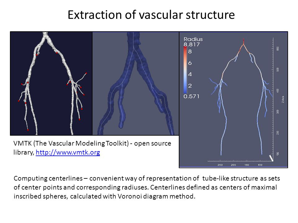 Patient specific reconstruction of vascular network for haemodynamic modeling.