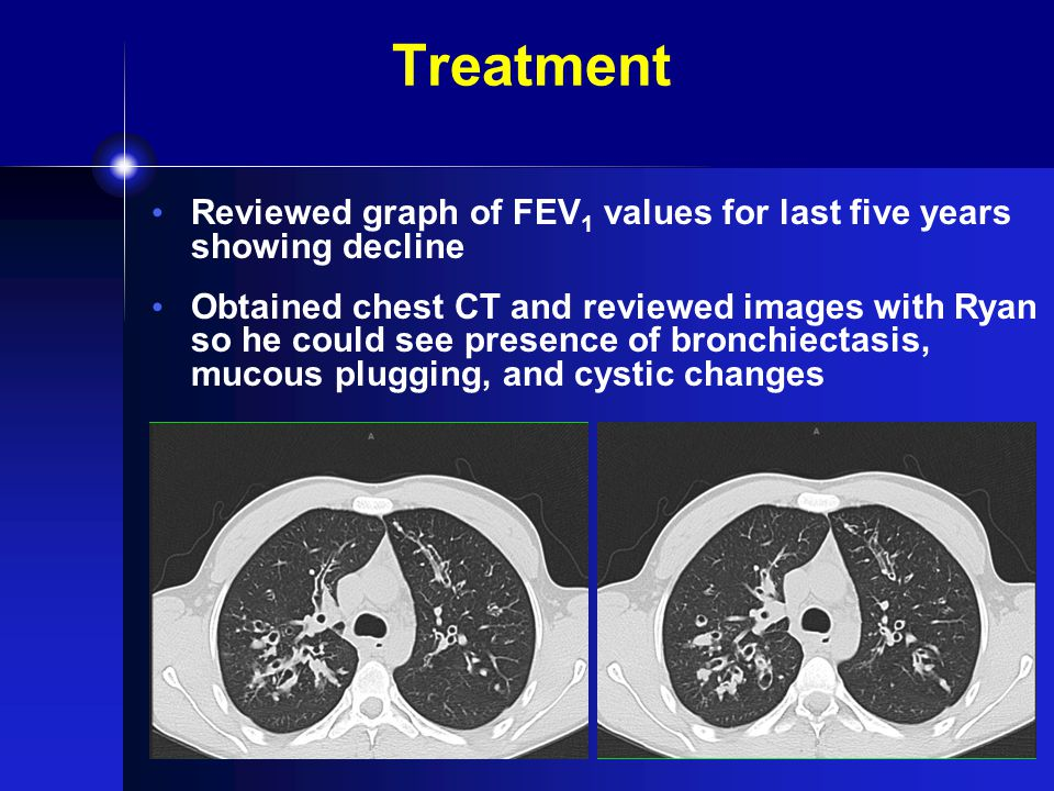Treatment Reviewed graph of FEV 1 values for last five years showing decline Obtained chest CT and reviewed images with Ryan so he could see presence of bronchiectasis, mucous plugging, and cystic changes