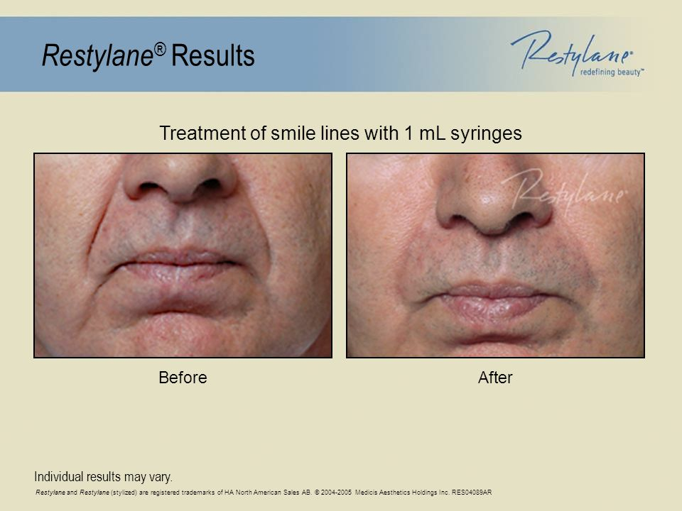 Restylane and Restylane (stylized) are registered trademarks of HA North American Sales AB.
