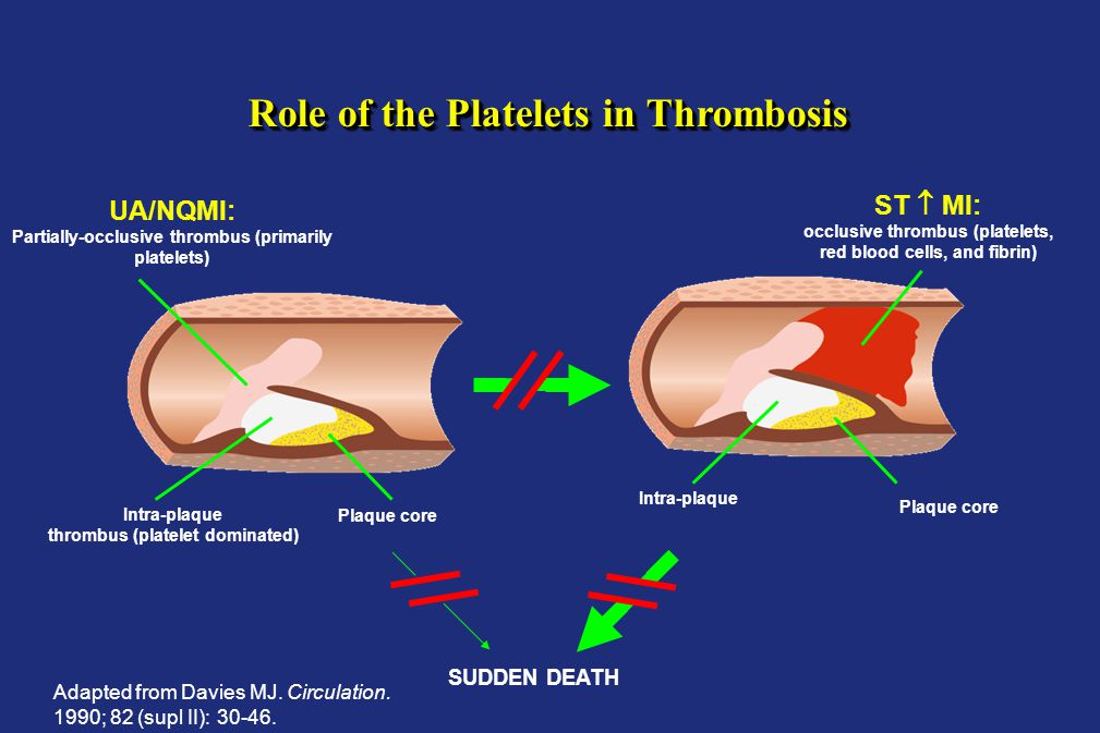 Role of the Platelets in Thrombosis UA/NQMI: Partially-occlusive thrombus (primarily platelets) Intra-plaque thrombus (platelet dominated) Plaque core ST  MI: occlusive thrombus (platelets, red blood cells, and fibrin) Intra-plaque thrombus (platelet dominated) Plaque core SUDDEN DEATH Adapted from Davies MJ.
