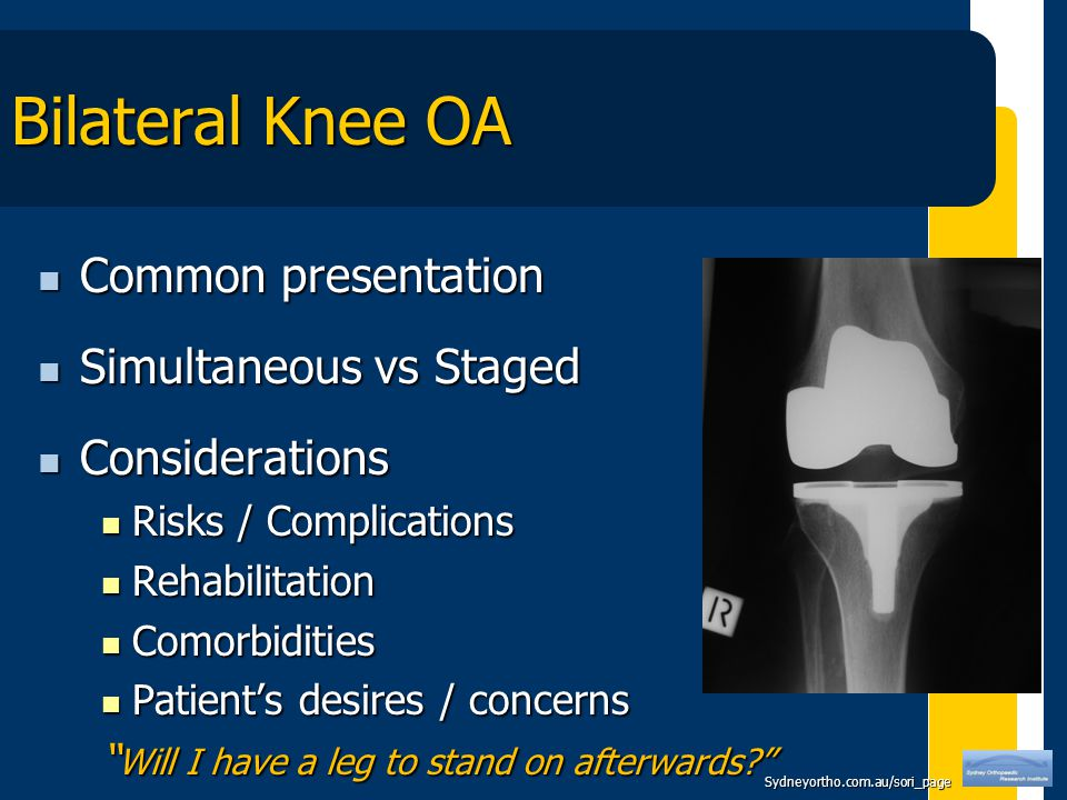 Sydneyortho.com.au/sori_page Bilateral Knee OA Common presentation Common presentation Simultaneous vs Staged Simultaneous vs Staged Considerations Considerations Risks / Complications Risks / Complications Rehabilitation Rehabilitation Comorbidities Comorbidities Patient's desires / concerns Patient's desires / concerns Will I have a leg to stand on afterwards
