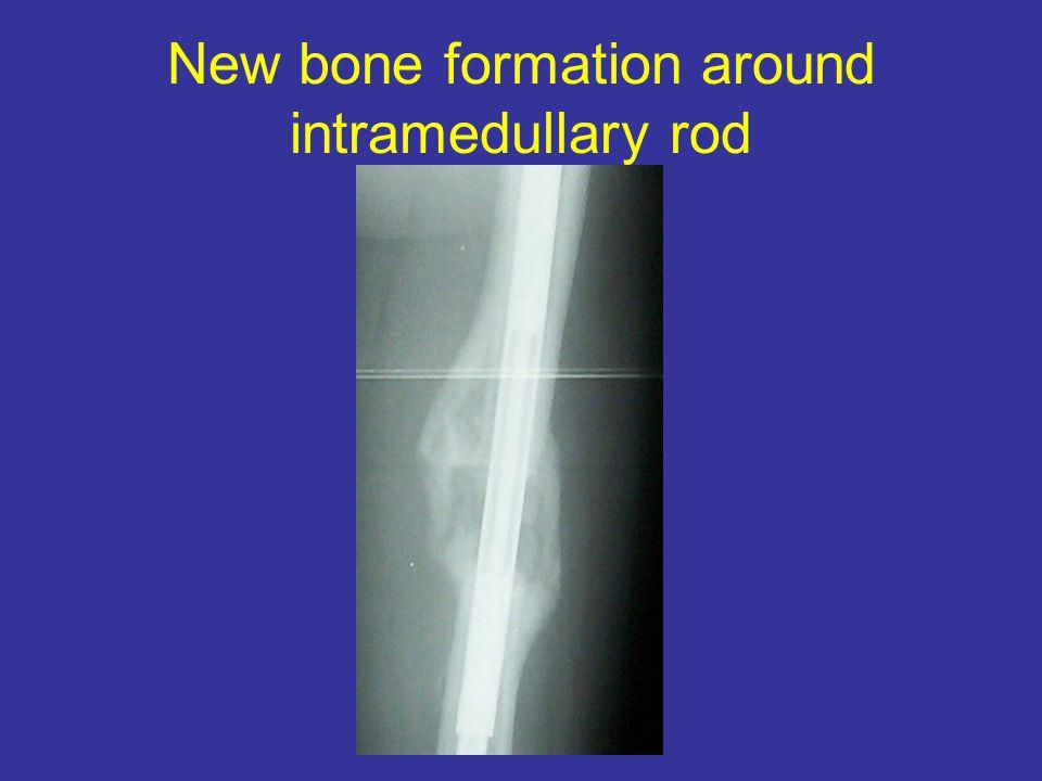 New bone formation around intramedullary rod