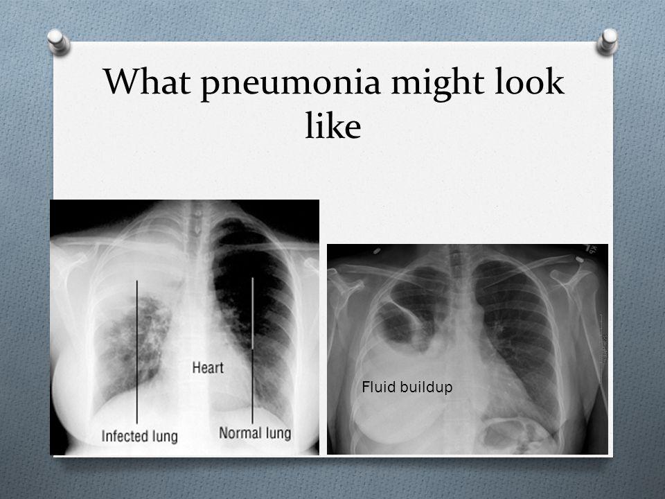 What pneumonia might look like Fluid buildup
