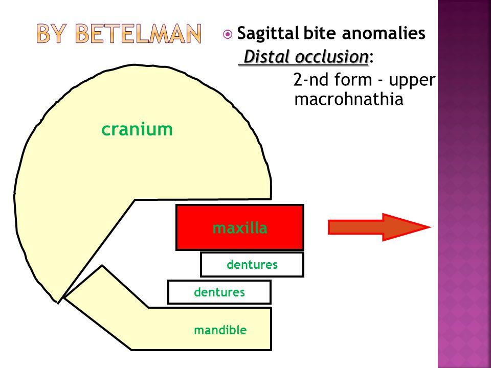 maxilla dentures  Sagittal bite anomalies Distal occlusion Distal occlusion: 2-nd form - upper macrohnathia mandible cranium
