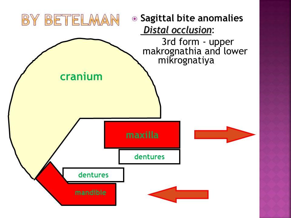 maxilla dentures  Sagittal bite anomalies Distal occlusion Distal occlusion: 3rd form - upper makrognathia and lower mikrognatiya mandible cranium