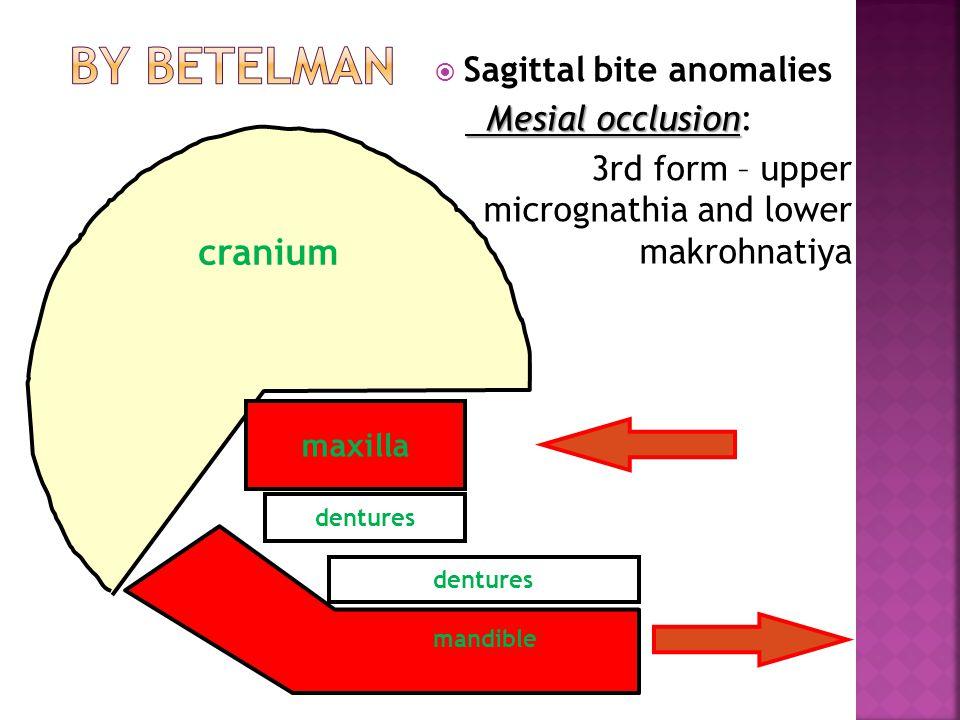 dentures  Sagittal bite anomalies Mesial occlusion Mesial occlusion: 3rd form – upper micrognathia and lower makrohnatiya mandible maxilla cranium