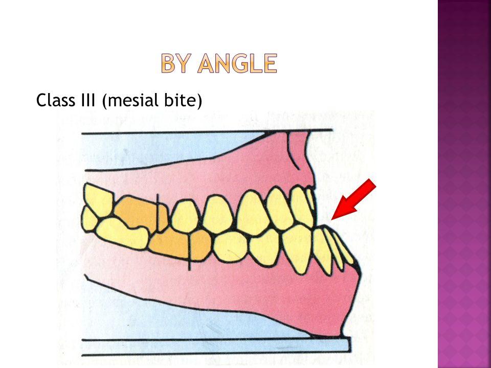 Class ІІІ (mesial bite)