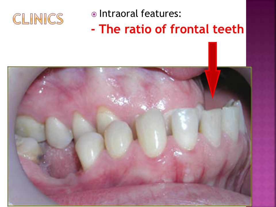  Intraoral features: - The ratio of frontal teeth
