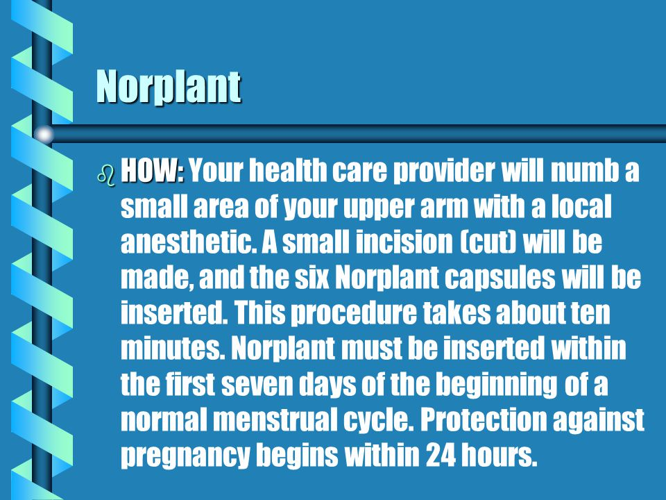 Norplant b b Norplant is a long-term method of birth control. Six soft capsules the size of matchsticks are surgically inserted under the skin of the