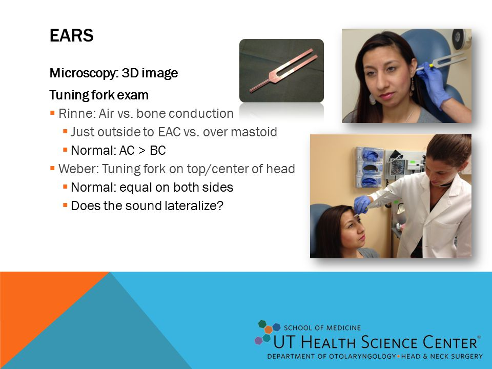 EARS Microscopy: 3D image Tuning fork exam  Rinne: Air vs.