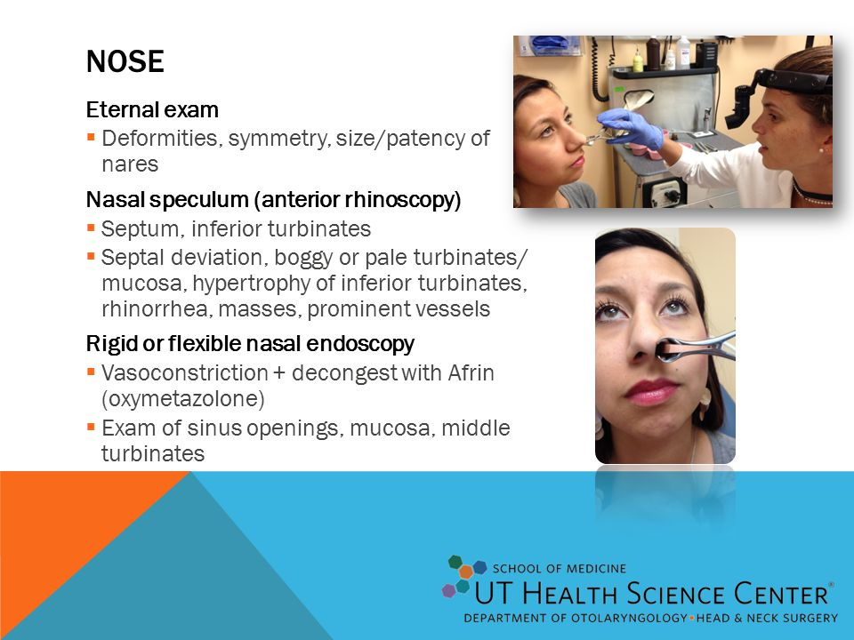 NOSE Eternal exam  Deformities, symmetry, size/patency of nares Nasal speculum (anterior rhinoscopy)  Septum, inferior turbinates  Septal deviation, boggy or pale turbinates/ mucosa, hypertrophy of inferior turbinates, rhinorrhea, masses, prominent vessels Rigid or flexible nasal endoscopy  Vasoconstriction + decongest with Afrin (oxymetazolone)  Exam of sinus openings, mucosa, middle turbinates