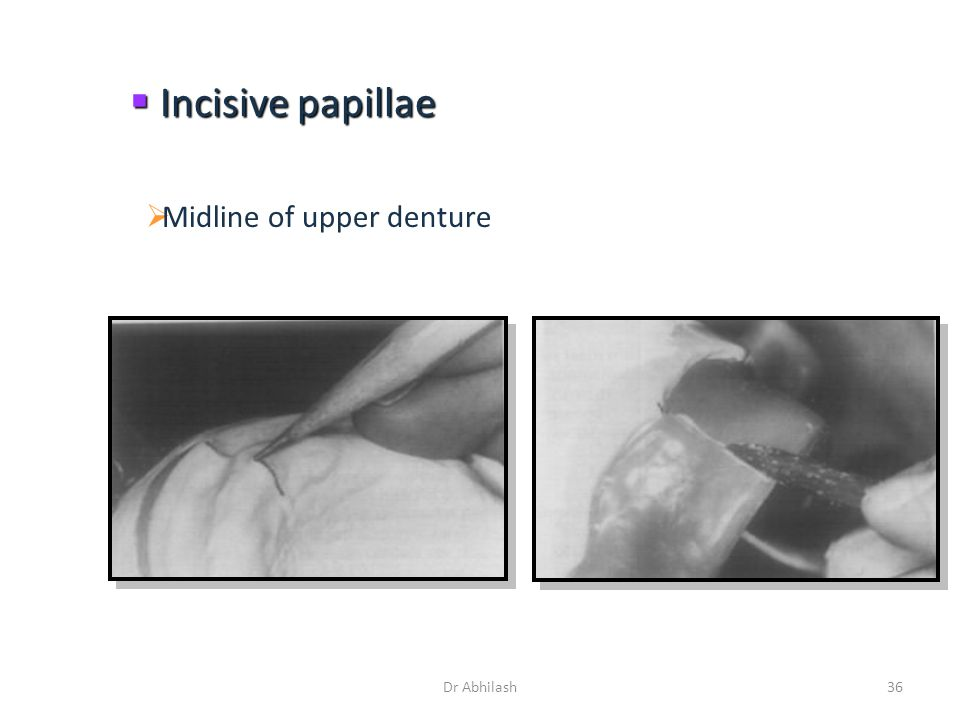 Incisive papillae  Midline of upper denture 36Dr Abhilash