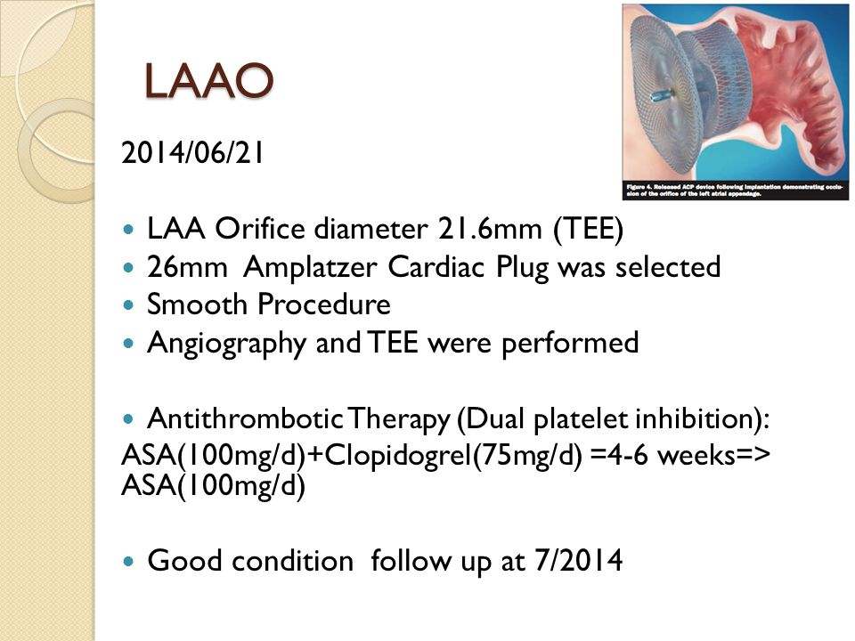 LAAO 2014/06/21 LAA Orifice diameter 21.6mm (TEE) 26mm Amplatzer Cardiac Plug was selected Smooth Procedure Angiography and TEE were performed Antithrombotic Therapy (Dual platelet inhibition) : ASA(100mg/d)+Clopidogrel(75mg/d) =4-6 weeks=> ASA(100mg/d) Good condition follow up at 7/2014