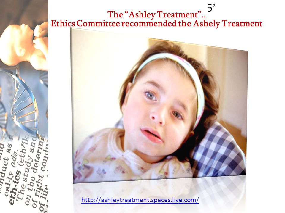 "http://ashleytreatment.spaces.live.com/ The ""Ashley Treatment"".. Ethics Committee recommended the Ashely Treatment 5'"