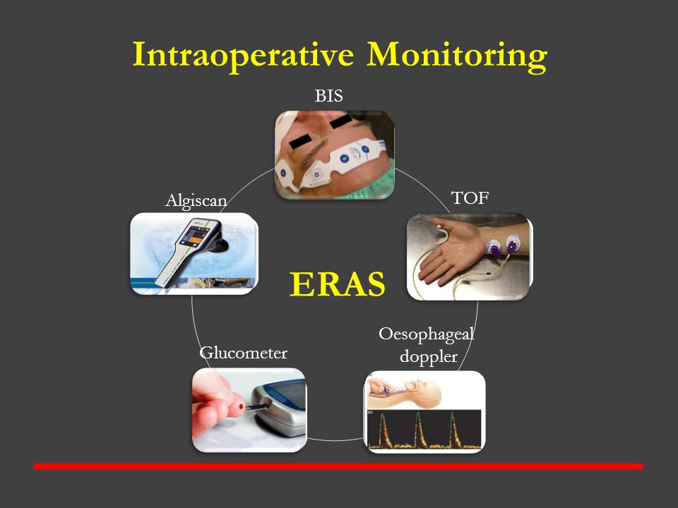 Intraoperative Monitoring Hypnosis Muscle relaxation Cardiac output GlucoseAnalgesia ERAS BIS Algiscan Oesophageal doppler Glucometer TOF