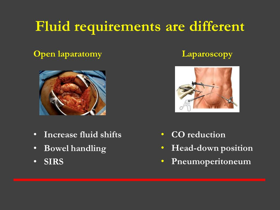 Fluid requirements are different Open laparatomy Increase fluid shifts Bowel handling SIRS Laparoscopy CO reduction Head-down position Pneumoperitoneu