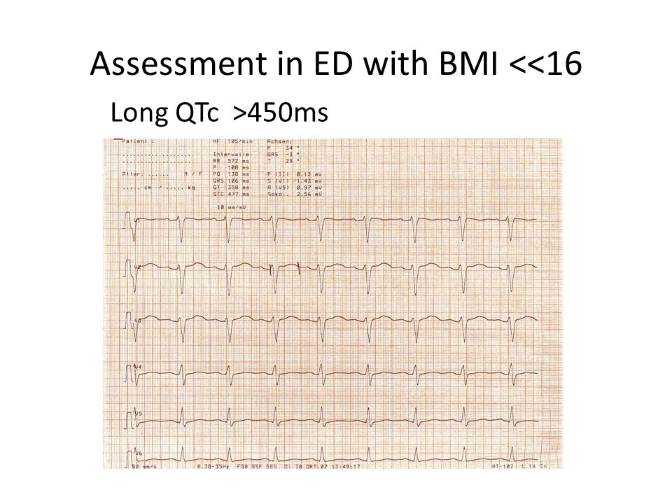 Assessment in ED with BMI <<16 Long QTc >450ms