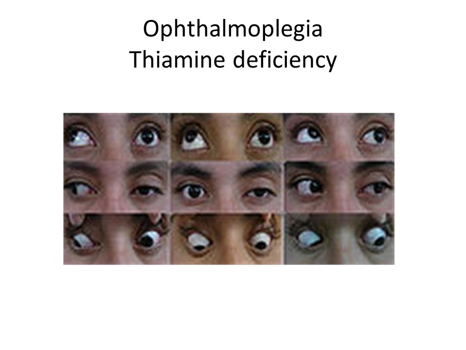 Ophthalmoplegia Thiamine deficiency