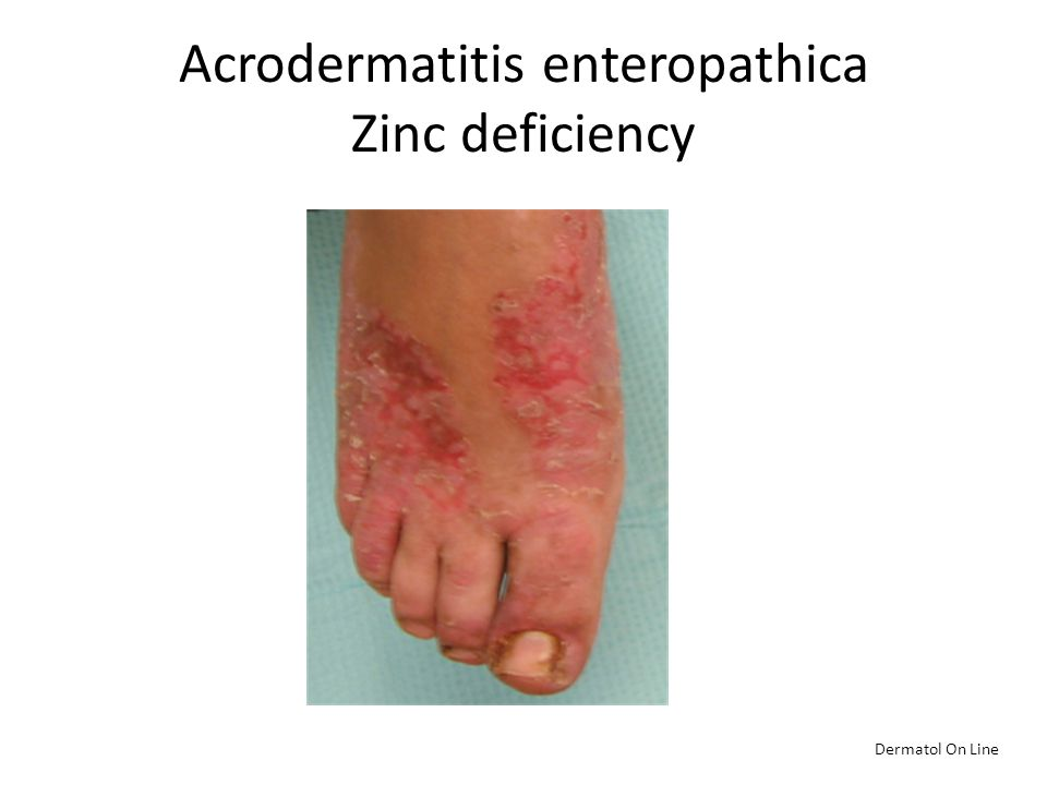 Acrodermatitis enteropathica Zinc deficiency Dermatol On Line