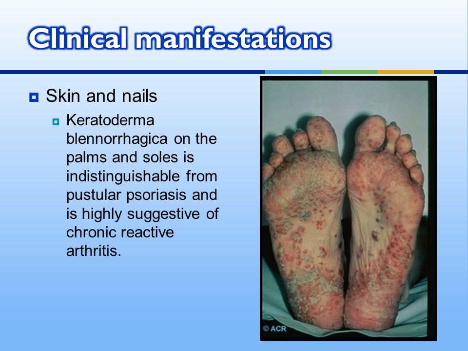  Skin and nails  Keratoderma blennorrhagica on the palms and soles is indistinguishable from pustular psoriasis and is highly suggestive of chronic